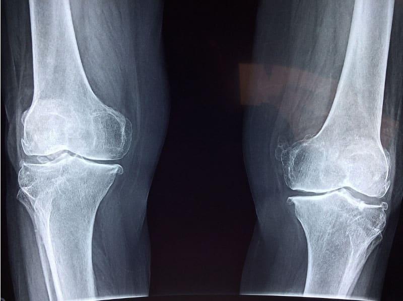 צילום מפרקי ברכיים